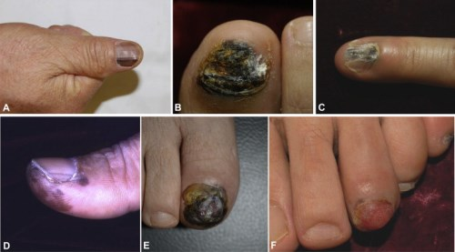 Initial Clinical And Morphological Characteristics Of Nail Apparatus Melanoma | PracticeUpdate